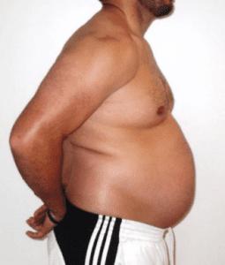 Большой живот - большие проблемы со здоровьем.
